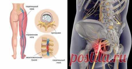 8 лучших методов лечения воспаления седалищного нерва + упражнения, которые устранят острую боль! Смотрите
