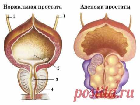 Диагноз ДГПЖ: что это, причины, симптомы, как диагностировать аденому простаты у мужчин старше 40 лет|