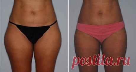 Cómo perder peso de las caderas y reducir tallas rápidamente – Hoy En Belleza