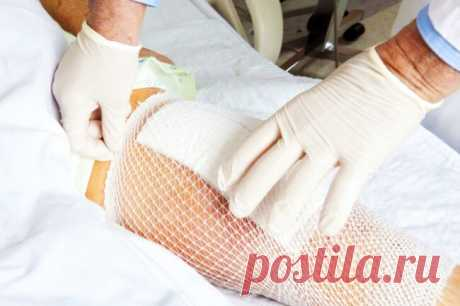 Платный врач рассказал, как лечить артроз обычной солевой повязкой. Делюсь личным опытом — Teletype
