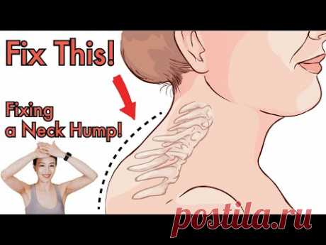 Быстрое исправление горба на шее ❗️