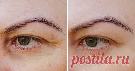 6действий для идеальной кожи под глазами, которые занимают 1минуту Темные круги, отеки, морщины под глазами— это совсем нето, что мыхотим видеть взеркале поутрам. Причин ихпоявления немало: генетика, недосыпание, обезвоживание, неправильное питание, гормональные изменения. Ночаще всего эти недостатки говорят оежедневном внешнем воздействии накожу, которому можно противостоять.