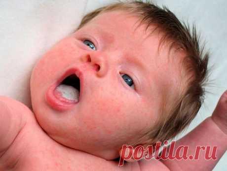Стоматит у детей – лечение в домашних условиях