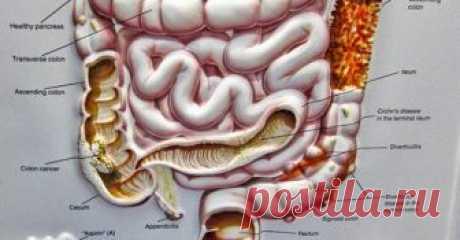 Как бактерии в кишечнике влияют на наш разум На здоровье мозга может повлиять и неожиданный источник ...