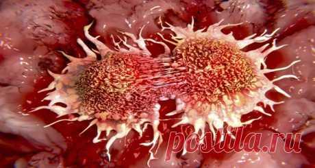 Почему это скрывают от общественности: 10 основных причин рака, которые мы используем каждый день!