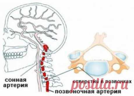 Гипертония при синдроме шейных артерий. Лечение | Советы целительницы