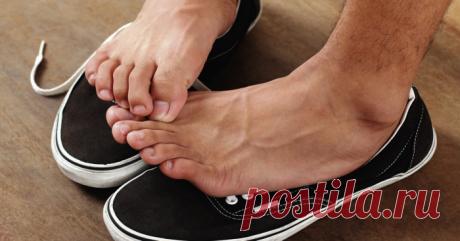 Причины неприятного запаха ног и как от него избавиться