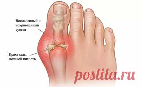 Gout: illness of a way of life