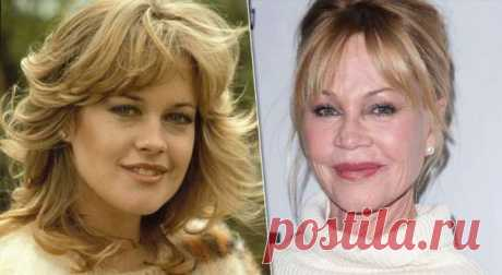 5 актрис, загубивших карьеру пластическими операциями . Милая Я