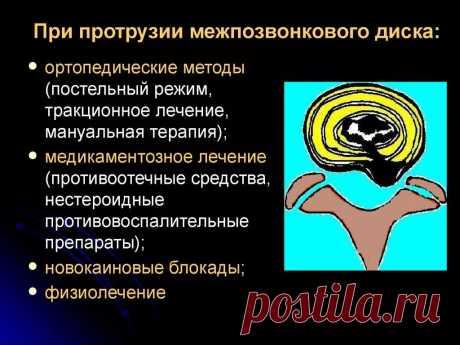 причины болей в спине факты: 9 тыс изображений найдено в Яндекс.Картинках