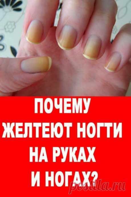 Почему желтеют ногти на руках и ногах? — Женские Советы