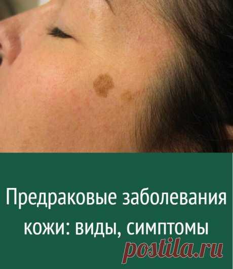 Предраковые заболевания кожи: виды, симптомы