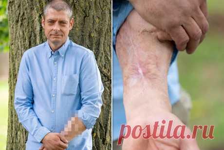 Британец из-за инфекции лишился пениса, но врачи отращивают ему новый на руке