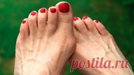 Растет косточка на ноге: причины, развитие болезни, лечение и профилактика