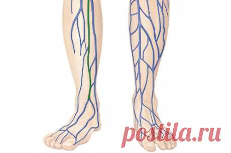Застой лимфы в ногах: причины и лечение