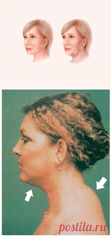Как связаны холка и поплывший овал лица  Бывает, глядишь на женщину, вроде и лицо в порядке, и в общем ухожена, но что-то не так. Она все равно кажется возрастной.  Все дело в том, как она выглядит в профиль. Точнее то, как выглядит в профиль ее шея. ➡️ Читайте, кликнув на фото