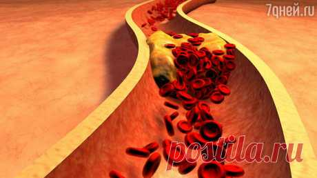 Назван продукт, который поможет снизить уровень холестерина