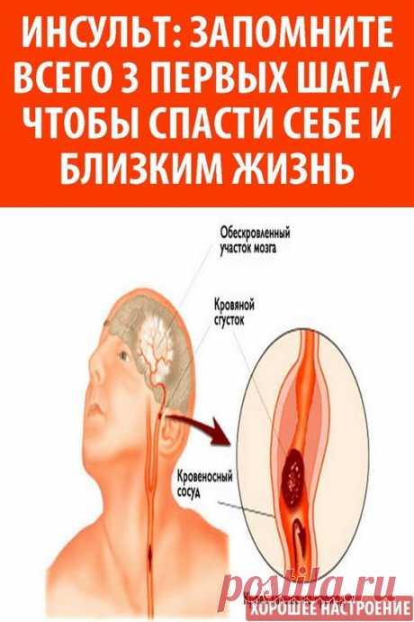 Инсульт – это внезапно возникающее нарушение мозгового кровотока. Инсульт происходит из-за кровоизлияния из поврежденного сосуда или при закупорке сосуда тромбом. Нарушение кровообращения в головном мозгу приводит к разрушению нервных клеток, и, как следствие, к нарушению функций, за которые отвечает поврежденный участок. Инсульт требует неотложной врачебной помощи, в этом случае дорога каждая минута – чем быстрее оказана помощь и восстановлен кровоток, тем больше шансов для минимизации последст