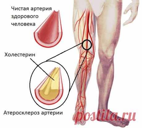 Лечение атеросклероза народными средствами Многие люди с возрастом начинают испытывать неприятное ощущение, когда по ночам немеют пальцы рук и ног. Зачастую эти признаки свидетельствуют о развитии атеросклероза кровеносных сосудов.