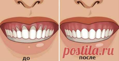 ¿Han notado el desnudamiento sheyki del diente? Muchas personas tienen unos problemas con que se ha desnudado sheyka o la raíz del diente. Esto llama la incomodidad y se acompaña de las sensaciones muy desagradables dolorosas y lleva a la acumulación de las bacterias, que destruyen los dientes …