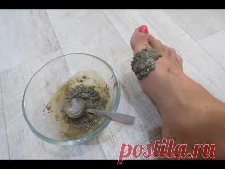 Эффективный СПОСОБ избавиться от косточки на ногах - YouTube
