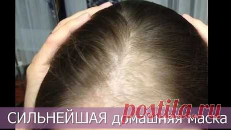 Очень сильно выпадают волосы — что делать? СИЛЬНАЯ ДОМАШНЯЯ МАСКА
