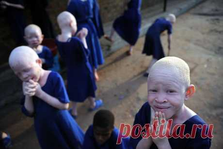 For example, in Tanzania on albinos arrange the most real hunting.