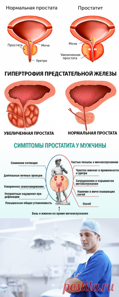 Что такое простата: симптомы и немного полезной информации для мужчин   Кладовая здоровья   Яндекс Дзен