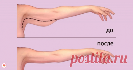 Упражнение для женщин старше 60 лет: подтягиваем мышцы рук выше локтя   Заметки Пирогова   Яндекс Дзен