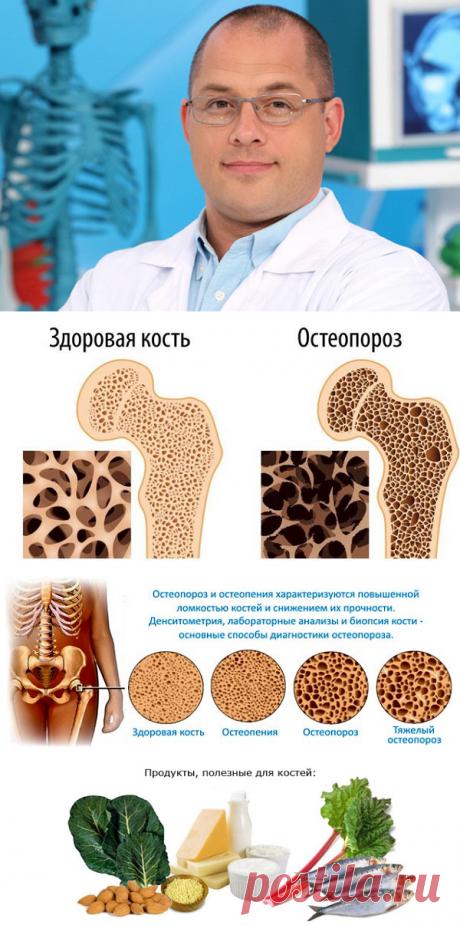 Как предотвратить остеопороз при климаксе: советы от доктора Агапкина   Блоггерство на пенсии   Яндекс Дзен