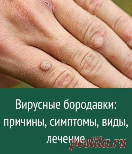 Вирусные бородавки: причины, симптомы, виды, лечение