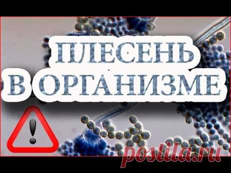 El moho en el organismo y la acción de la sosa - Ogulov Y T