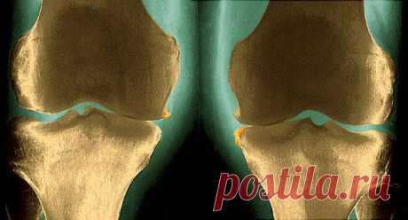 Проблемы со здоровьем при ревматоидном артрите
