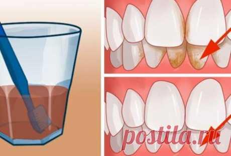 Способ избавиться от зубного камня дома Некоторые из нас до сих пор отказываются регулярно посещать стоматолога. А вот мириться с неприятным запахом изо рта и некрасивым налетом не хочется. Что делать в этой ситуации? Есть один действенный …