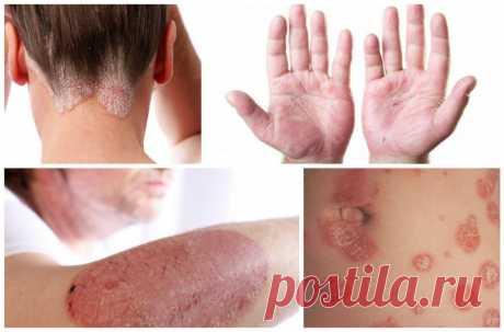 Лечение псориаза чистотелом, чистотел от псориаза как применять, как лечить псориаз чистотелом в домашних условиях, чистотел при псориазе отзывы
