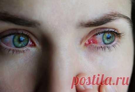 Красные глаза после сна: почему и что делать? — СОВЕТНИК