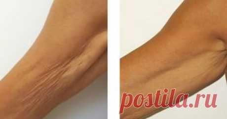 Это средство борется с дряблостью кожи, на зависть пластическим хирургам! К большому сожалению, переходя порог 45 лет, у женщин, а нередко, и у мужчин,начинают сказываться последствия прожитых годов. Самое заметное место — это наша кожа. Шея, руки, живот, бедра — …