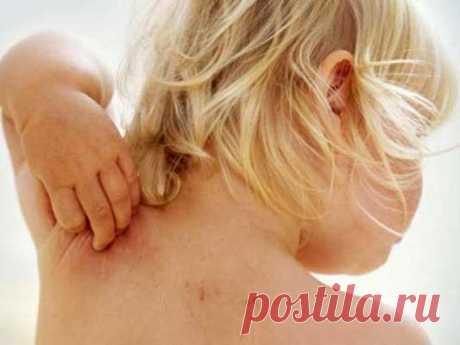 Атопический дерматит или нейродермит - причины симптомы и препараты для лечения | Здоровье и красота в домашних условиях
