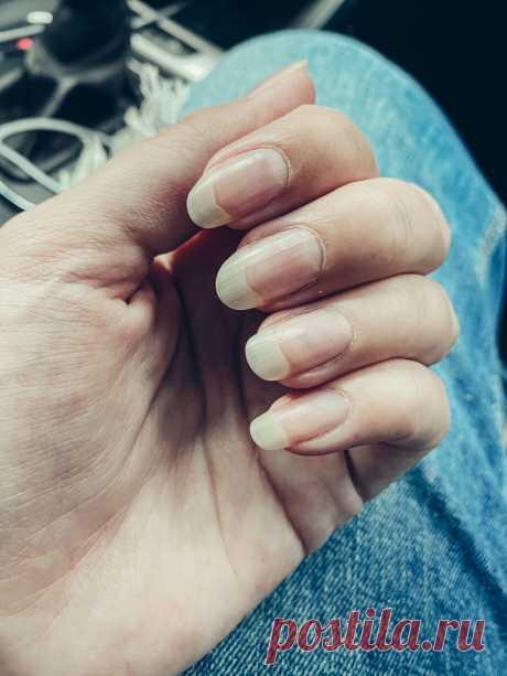 Заволосение при беременности. Как мои волосы, ногти и кожа отреагировали на гормоны | Жизнь Вупсеня и Пупсеня | Яндекс Дзен