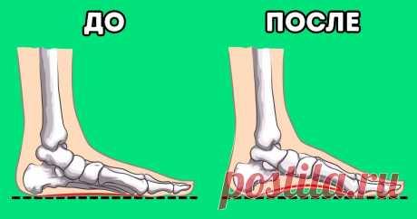 7 упражнений от ортопедов, чтобы увеличить высоту свода стопы и уменьшить боль в ногах Около 20–30% населения мира страдает отдеформации стопы. Люди, знакомые сэтой проблемой, также нередко испытывают боли вколене, бедрах испине. Если вызаметили, что увас развивается плоскостопие, несколько простых упражнений помогут вам исправить ситуацию иизбежать возможных повреждений вбудущем.