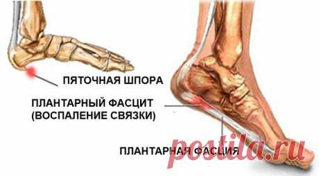 Real history of treatment of a calcaneal spur
