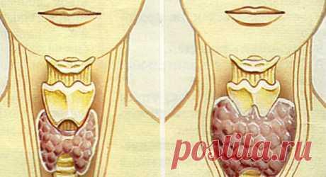 Лечим узел на щитовидной железе   Растимул Мастерская Жизни