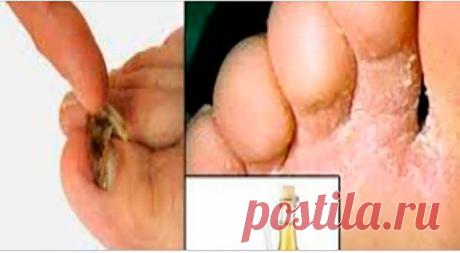 Грибок ногтей исчезнет навсегда с помощью этого домашнего средства! Поделиться на Facebook Естественная и традиционная медицина становится все более популярной и заключается в том,...