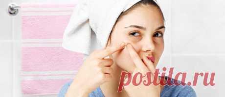6 простых правил, которые уберут прыщи с твоего лица
