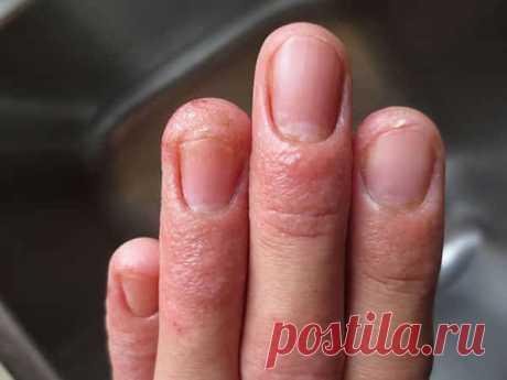 Грибок ногтей симптомы на руках Грибок ногтей на руках – стадии и лечение. Как вылечить?  Перейти к разделу Чем еще можно лечить грибок на руках? - Лечить грибок на руках также можно с ... ногтей на ногах – стадии, симптомы, как ... Симптомы грибка на руках · Причины появления ...
