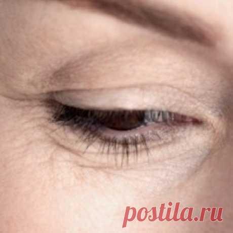 Морщины под глазами: как избавиться (убрать)