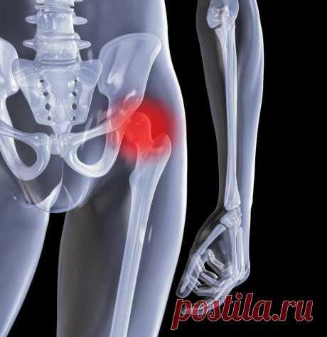 Три причины разрушения тазобедренного сустава – их нужно исключать | Свободное движение | Яндекс Дзен