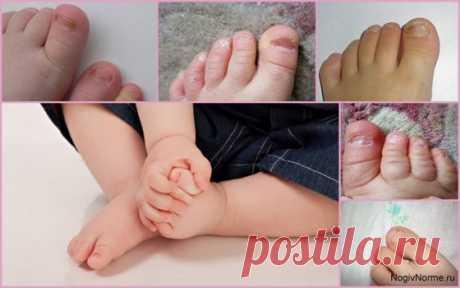 Грибок ногтей у детей на ногах: фото, лечение