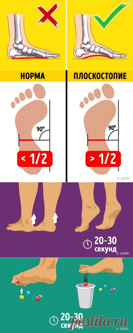 Всего 2упражнения, иплоскостопие вас непобеспокоит