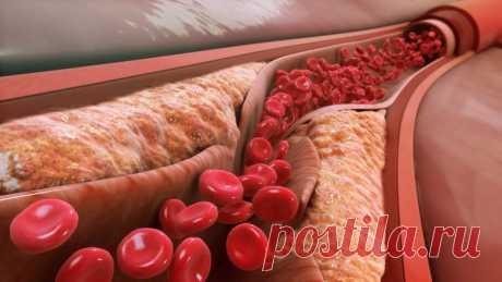 Как лечить атеросклероз народными средствами / Будьте здоровы